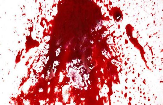 أسباب تقيؤ الدم