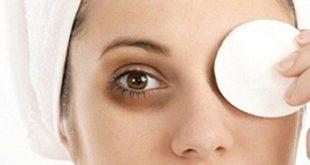 علاج السواد حول العين