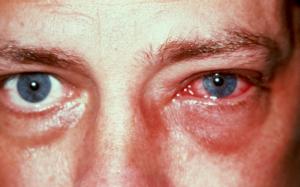 أحمرار العين