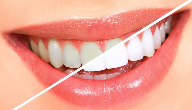 تبيض الأسنان باستخدام الطبيعة