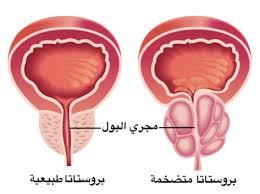 أعراض تضخم البروستاتا الخبيث أسبابها وعلاجها عند الشباب