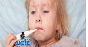 علاج مرض الحصبة