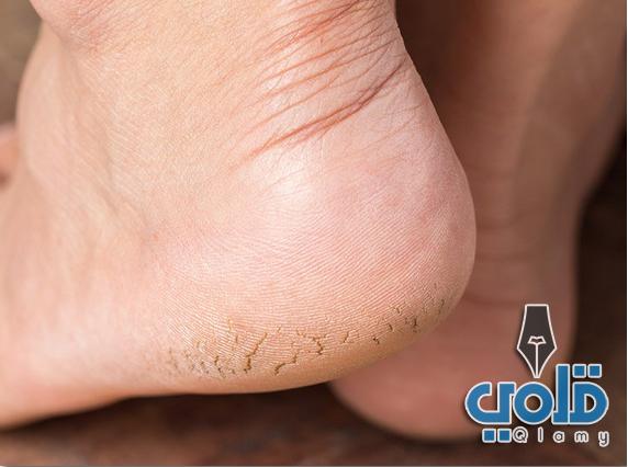 علاج تشقق القدمين خلال يوم واحد