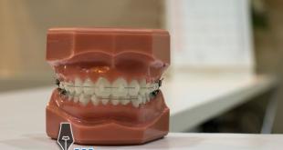 مطوية عن نظافة الأسنان