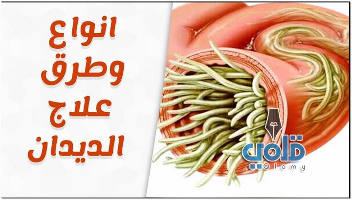 علاج الديدان بالاعشاب للدكتور سعيد حساسين