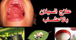 علاج السيلان بالاعشاب