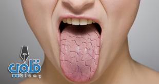 علاج جفاف الفم