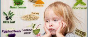 ماهو علاج الحصبة بالاعشاب