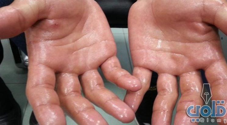 علاج تعرق اليدين بالاعشاب