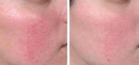 كيفية علاج التهاب بشرة الوجه