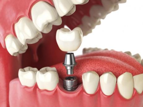 افضل مركز اسنان في الرياض - قلمي
