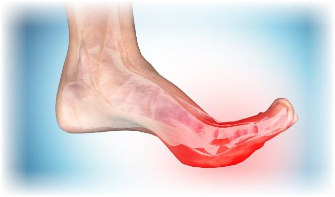 كيفية علاج شد اعصاب القدم