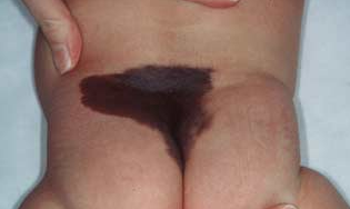 انواع الوحمات الجلدية بالصور